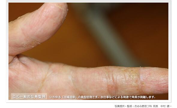 主婦湿疹(手湿疹)(症例写真)