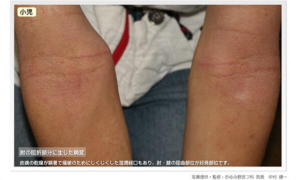 アトピー性皮膚炎:肘の屈折部分に生じる病変(症例写真)