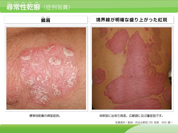 乾癬(かんせん)