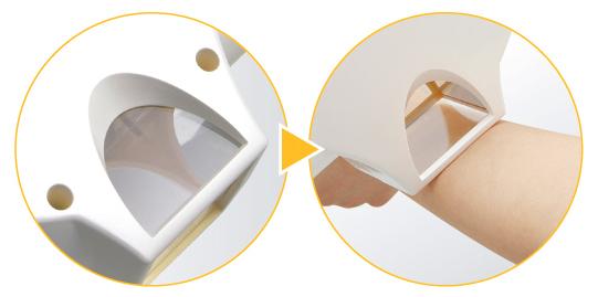 紫外線(エキシマ光)による皮膚疾患の治療